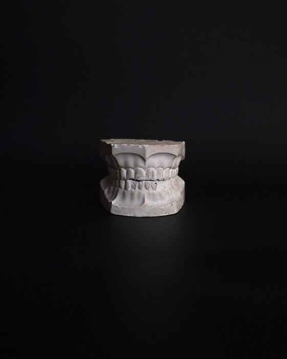 歯の石膏模型