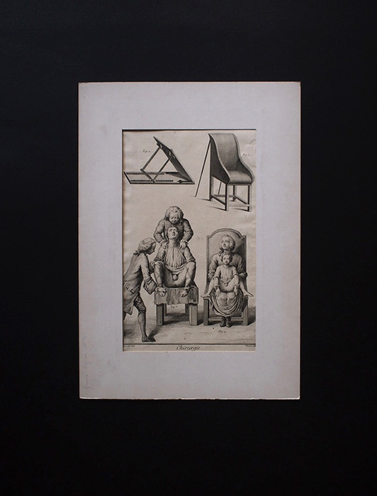 Chrurgie 手術に関するの図版