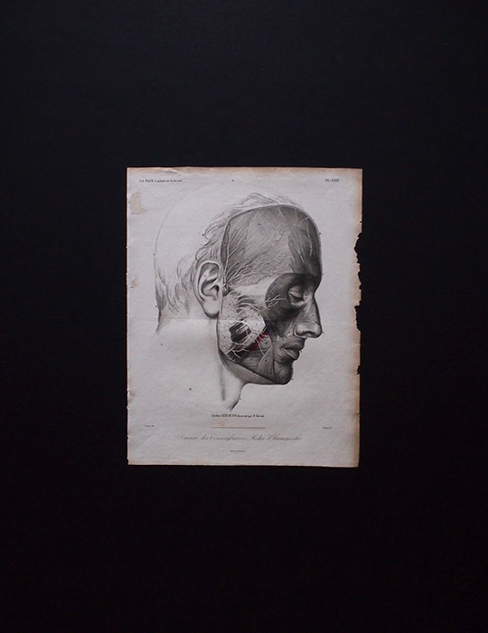 人体解剖図 Atlas du Journal des connaissances médico-chirugicales 4